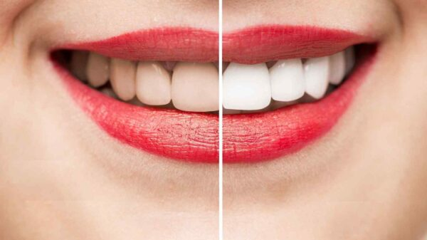Teeth Whitening and GLO Whitening Services